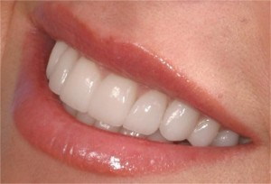 Porcelain Veneers Chicago