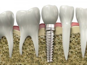 dental implants Chicago