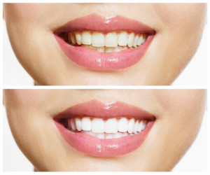 teeth whitening Chicago